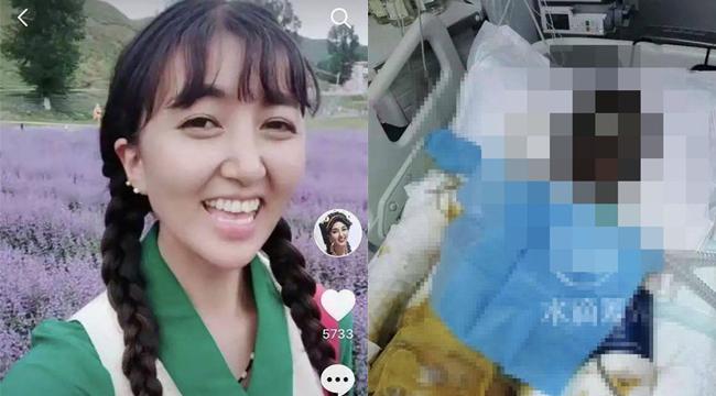 Nữ streamer Tiktok bị chồng cũ dội xăng thiêu sống ngay trên livestream